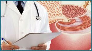 Antígeno prostático